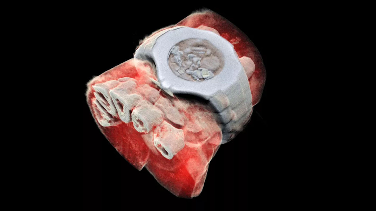 Röntgen renklendi ve 3 boyutlu hale geldi