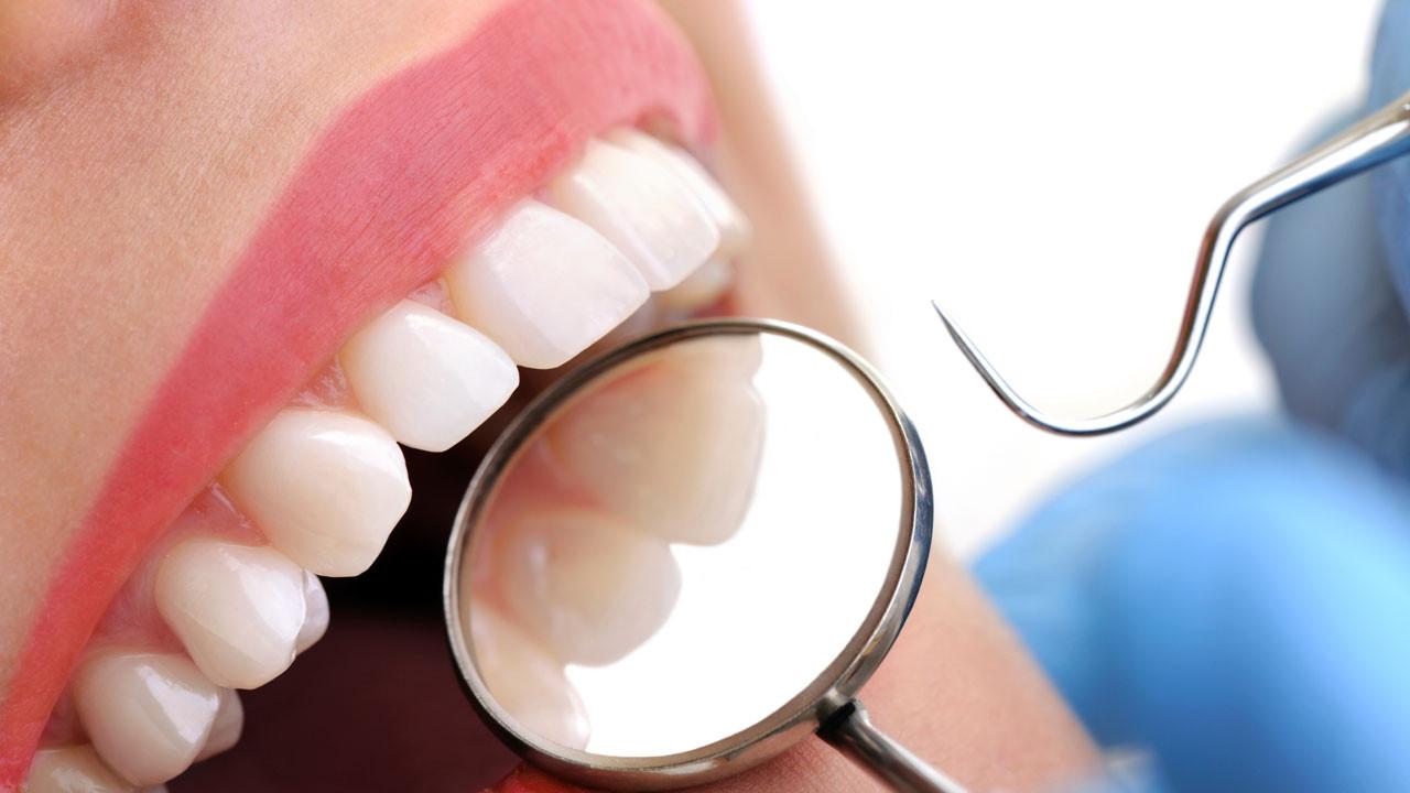 Diş çürüklerinin sebebi bağışıklık hücreleri olabilir
