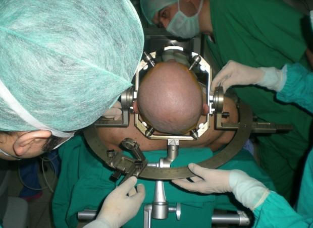 3000 sene önce Anadolu'da yapılan beyin ameliyatı! - Page 2