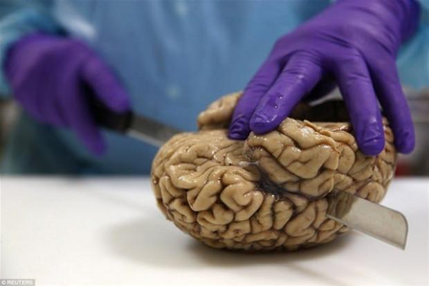 Bağışlanan beyinler burda saklanıyor! - Page 3
