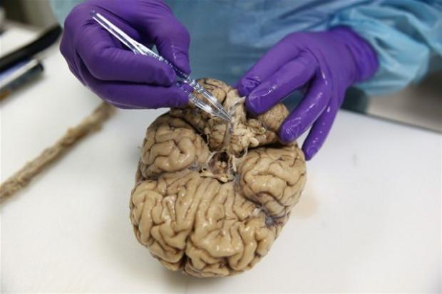 Bağışlanan beyinler burda saklanıyor! - Page 4