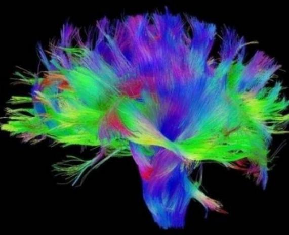 Beyin gücü böyle görüntülendi! - Page 2