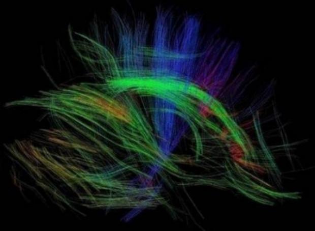 Beyin gücü böyle görüntülendi! - Page 3
