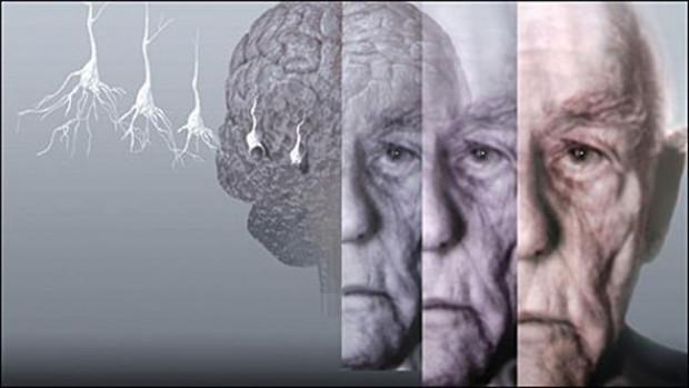 Beyin yaşlanmasının 15 sebebi - Page 1
