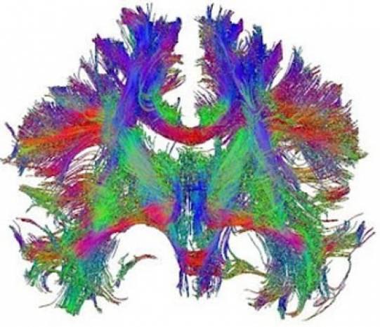 Beyni hiç böyle gördünüz mü? - Page 2