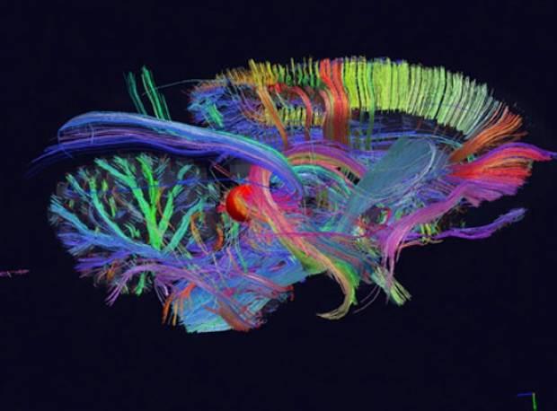 Beyni hiç böyle gördünüz mü? - Page 3