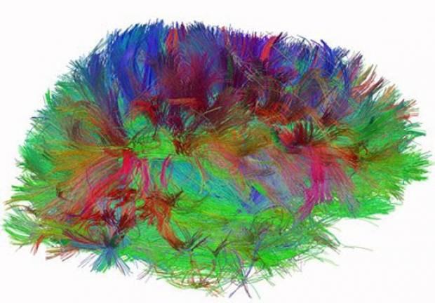 Beyni hiç böyle gördünüz mü? - Page 4