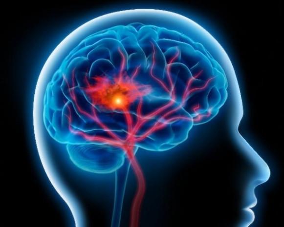 Beyniniz hakkında bilinmeyen gerçekler - Page 1