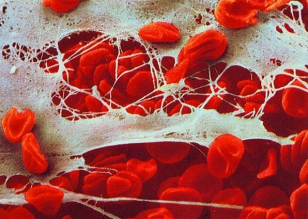 Bu görüntüler bağışıklık sisteminize ait! - Page 3