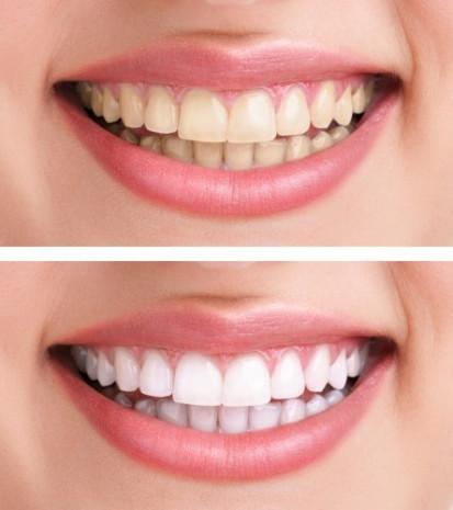 Diş beyazlatmanın 6 formülü - Page 2