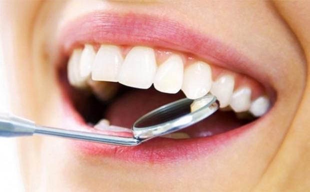 Diş beyazlatmanın 6 formülü - Page 4