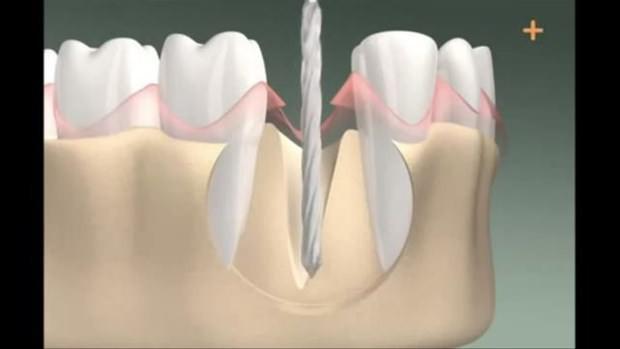 Diş implantının nasıl yapıldığını gördünüz mü? - Page 2