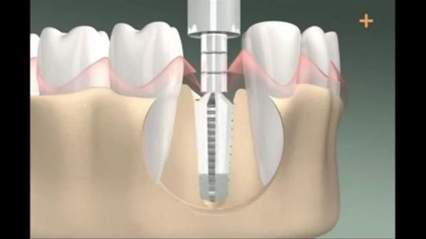 Diş implantının nasıl yapıldığını gördünüz mü? - Page 4