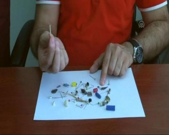 Doktorlar yanlışlıkla yutulan cisimlerden koleksiyon yaptı - Page 2
