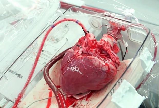 Domuz bedeninde insan organı yetiştirilecek! - Page 2