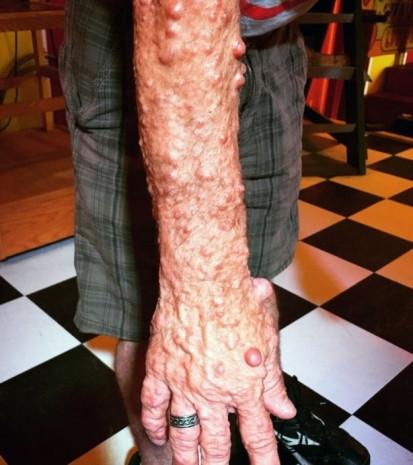 Dünyanın en acayip hastalıkları - Page 2