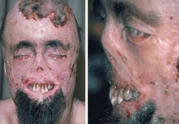Dünyanın en korkunç hastalıkları - Page 2