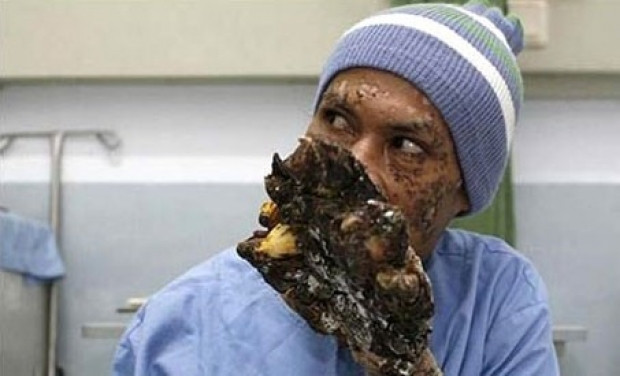 Dünyanın en korkunç hastalıkları - Page 3