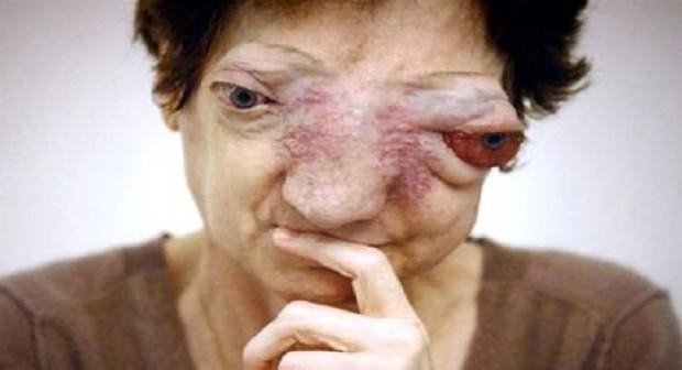 Dünyanın en korkunç hastalıkları - Page 4