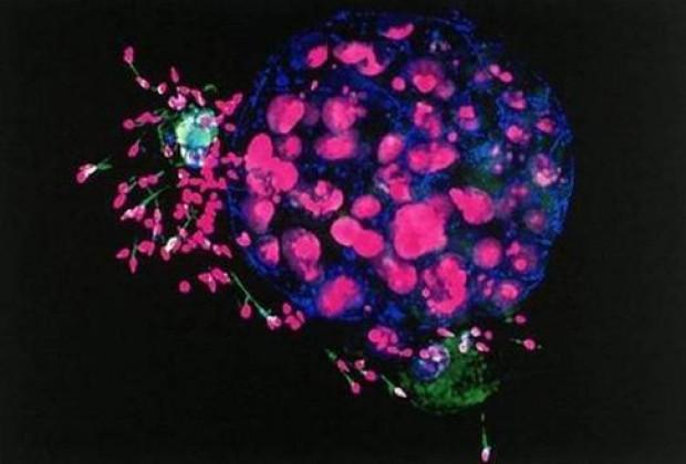 Elektron Mikroskopu ile vücudunuza bakın! - Page 4