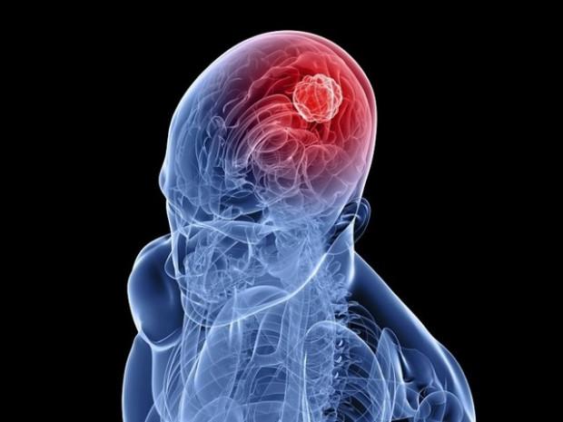 İnsan beyni kaç gigabayt biliyor musunuz? - Page 2