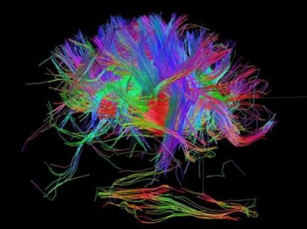 İnsan beynindeki duygu hareketleri görüntülendi! - Page 2