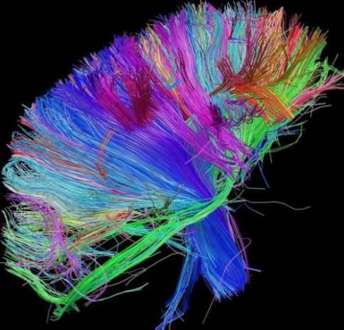 İnsan beynindeki duygu hareketleri görüntülendi! - Page 4