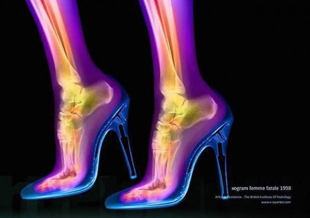 İnsan vücudunun farklı şeyler yaparken röntgen altında çekilmiş 14 fotoğrafı - Page 3