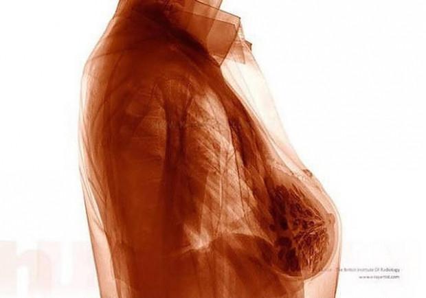 İnsan vücudunun farklı şeyler yaparken röntgen altında çekilmiş 14 fotoğrafı - Page 4