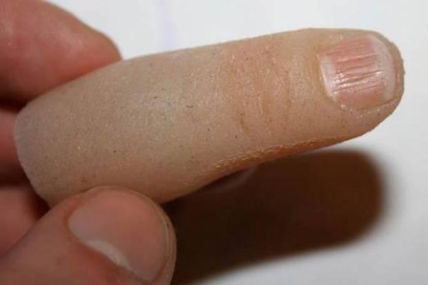 Kopan Parmağının Yerine Usb Bellek Taktırdı! - Page 4