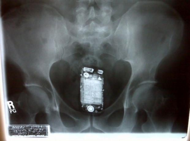 ''Nasıl ölmemişler!'' Dedirten inanılmaz kazalar ve röntgen filmleri - Page 4