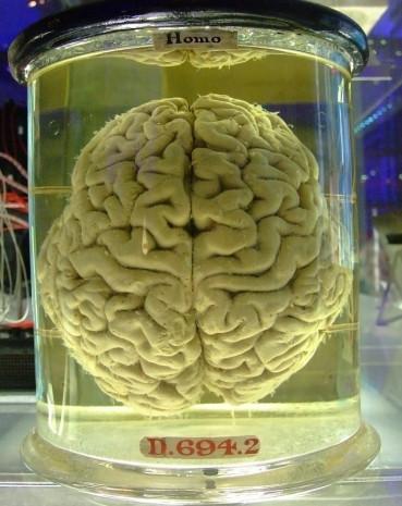 Ölümünden sadece bir kaç saat sonra beyni kayboldu! - Page 2