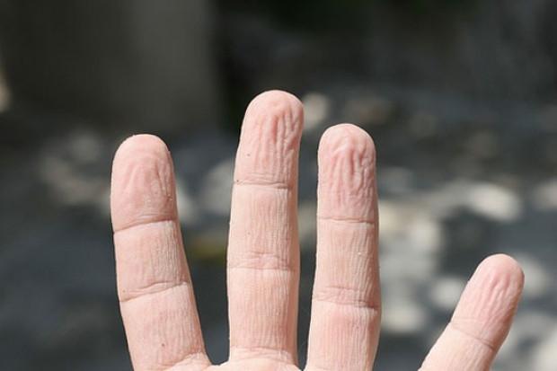 Parmaklar suda neden buruşur? - Page 2