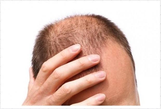 Saç dökülmesinin 20 sebebi - Page 4