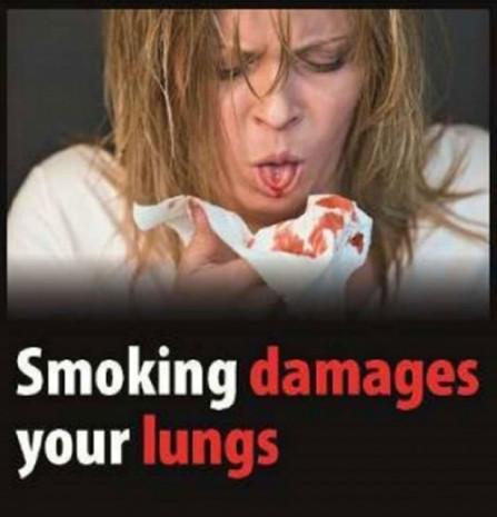 Sigara paketlerindeki fotoğraflar değişiyor - Page 2