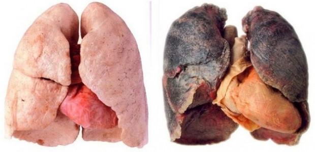 Sigarayı bıraktıktan sonra vücutta oluşan etkiler - Page 3