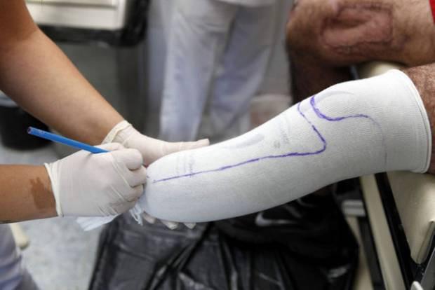 TSK'da protez üretiyor - Page 4