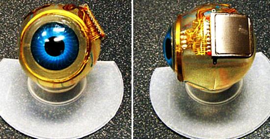 1336137850_worlds-first-bionic-eye-microchip-implant-successful-may-3-2012-singularity-transhumanism.jpg