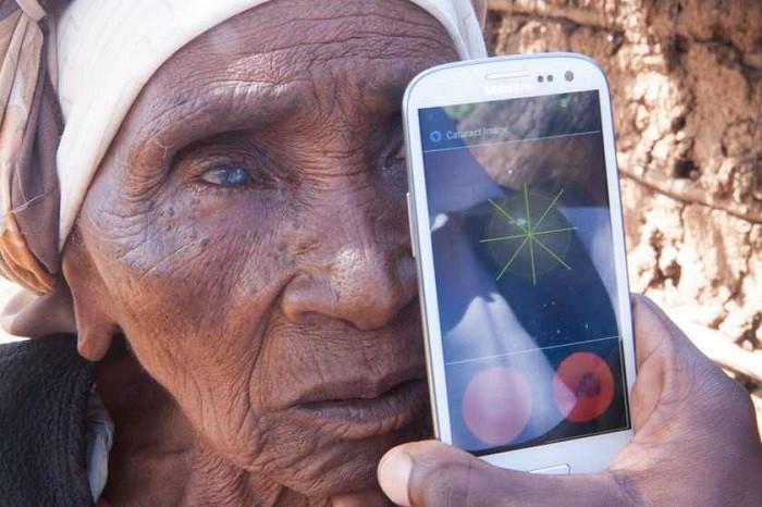 1417184038_cataract-testing-outside-patients-home1-peek.jpg