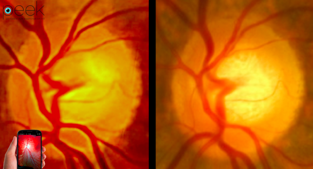 1417184072_peek-retina-comparison-image-640x346.png