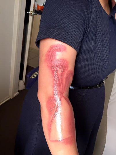 1479201570_melanie-tan-pelaez-suffers-a-second-degree-burn-on-her-right-arm-after-falling-asleep-on-her-iphone-7.jpg