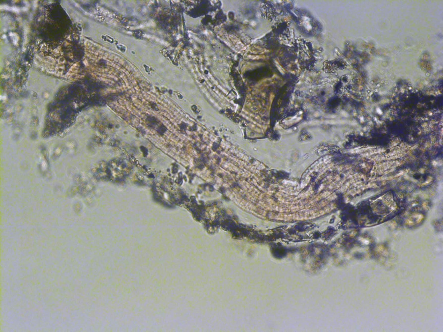 1493208187_venus-hair-bacteria-2.jpg
