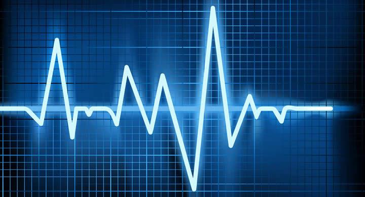 1506407472_heart-arrhythmia.jpg