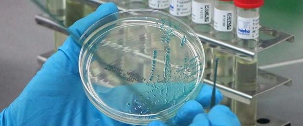 1509446031_bakterilerin-de-dokunma-duyusu-varkglrzkntxuyug06uhq-o2g.jpg