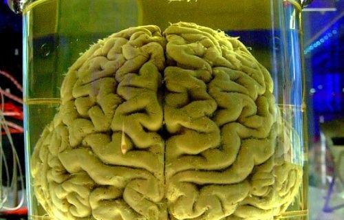 İnsan beyni kavanozda ne kadar yaşayabilir?