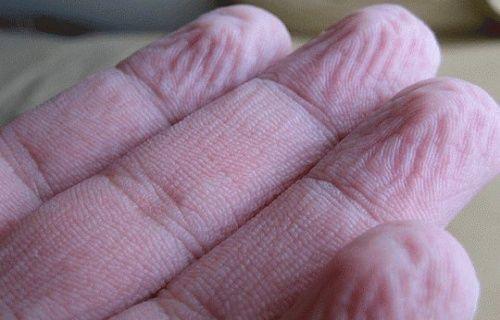 Parmaklarımız suda neden buruşur?