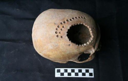 2500 yıl önce yapılan beyin ameliyatı yöntemleri bilim adamlarını şaşırttı!