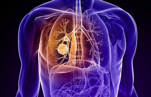 İmmünoterapi, kanserde kullanılan kemoterapiye alternatif olabilir