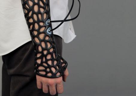 Türk öğrenci 3D yazıcı ile kemik kırıklarını iyileştiren alçı yaptı!